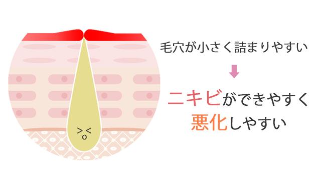 ②毛穴が小さく皮脂が詰まりやすい箇所であるため