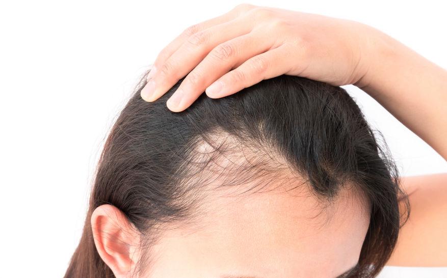 髪のボリュームの低下する(薄毛)